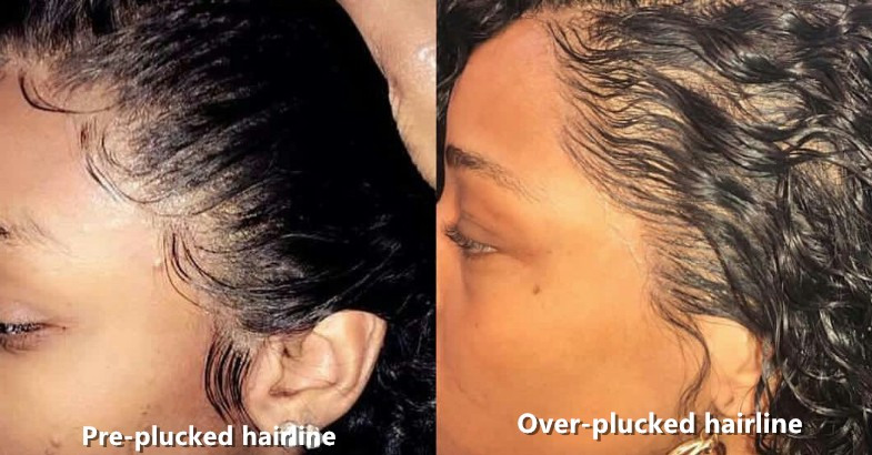 preplucked hairline